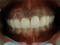 tanden na behandeling door tandarts